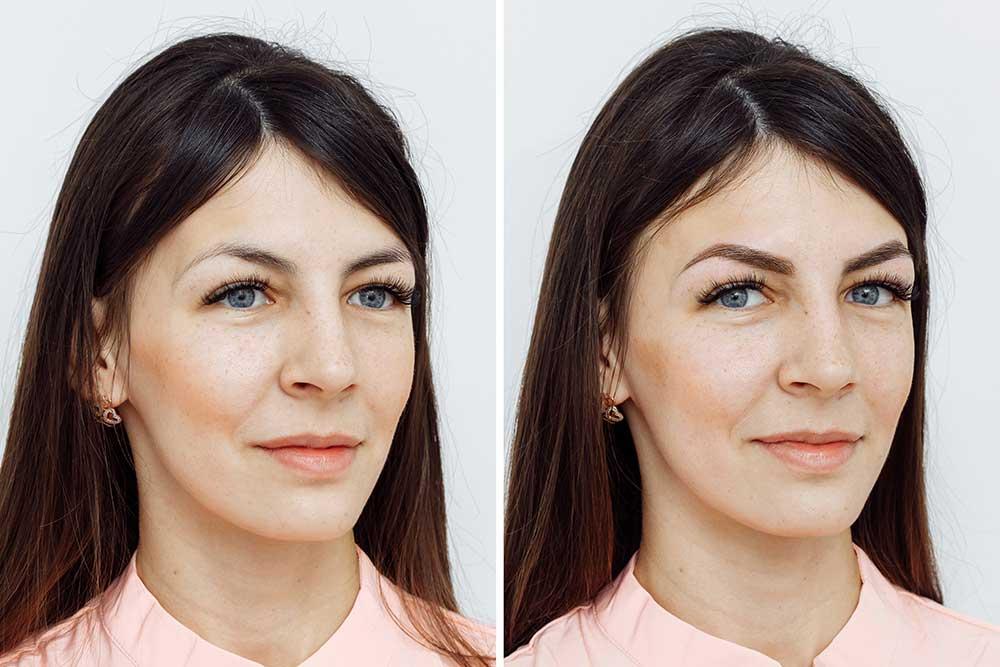 Nano Brow Tattooing (3d Eyebrows)